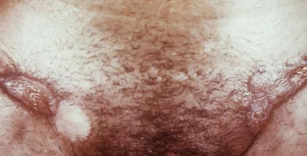 Granuloma Venereum