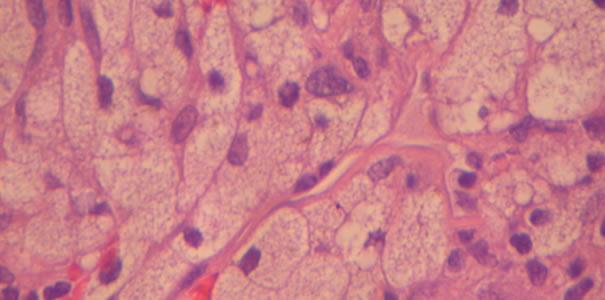 Lipoidihistiocytosis