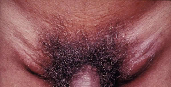 Lymphogranuloma inguinale