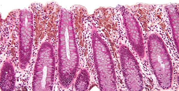 Melanosis Coli