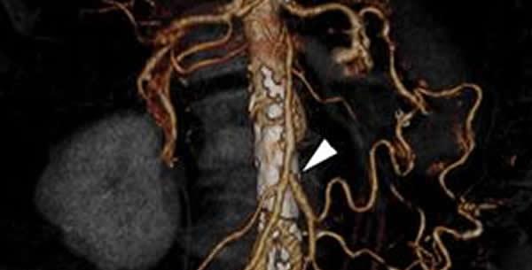 Mezenterijalna vaskularna okluzija