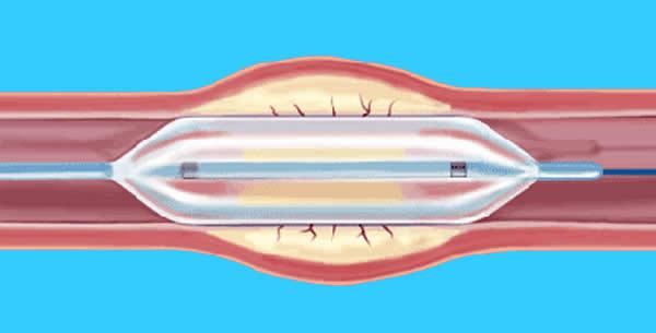 Perkutana transluminalna angioplastika