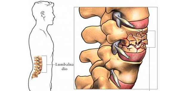 Povrede kičmenog stuba
