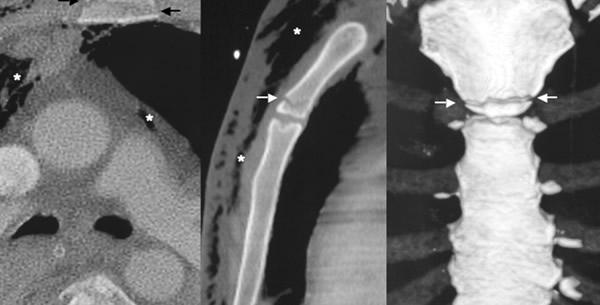Prijelom prsne kosti