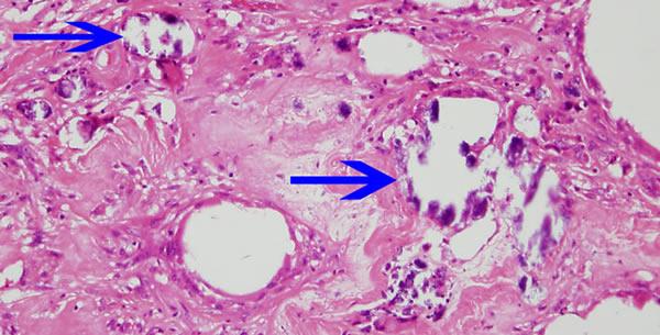Steatonecrosis
