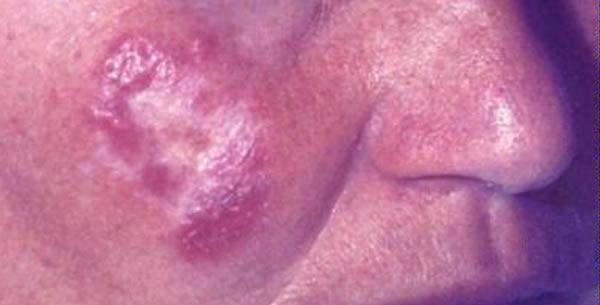 Tuberculosis Cutis Luposa
