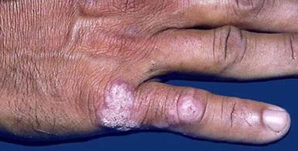 Tuberculosis Verrucosa Cutis