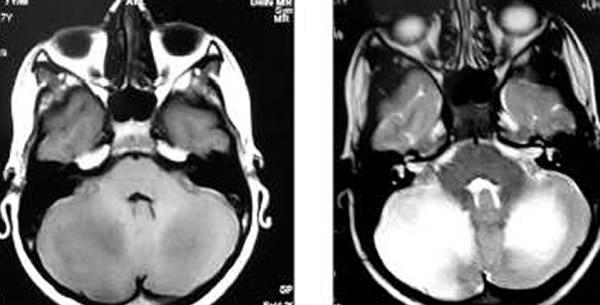 Akutna cerebelarna ataksija
