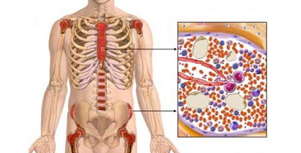 Akutna mijeloična leukemija