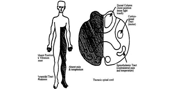 Brown-Sequard sindrom