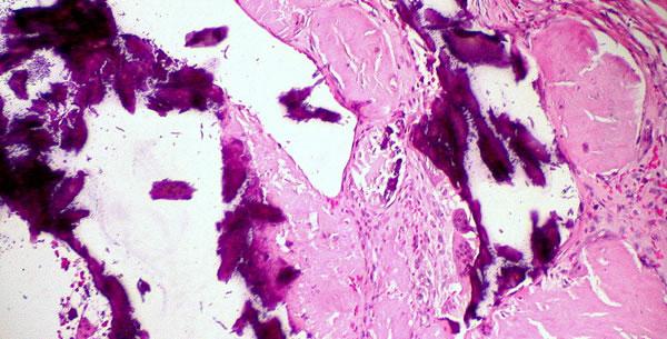 Distrofična kalcifikacija