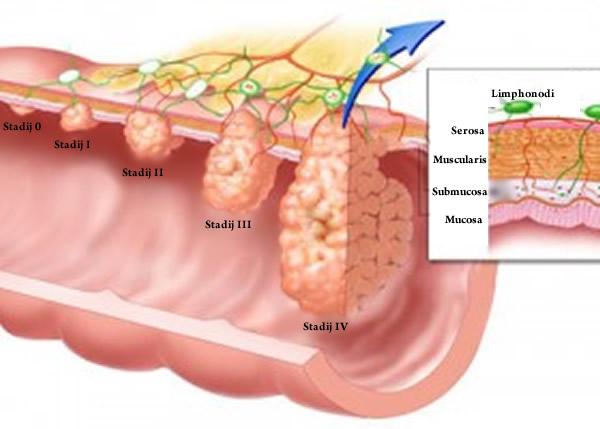 Klasifikacija malignih tumora