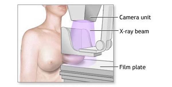 Mamografija