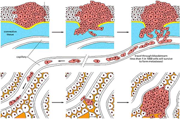 Metastaziranje tumora