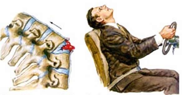 Povreda vratnog dijela kičme