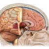 Tumori glave