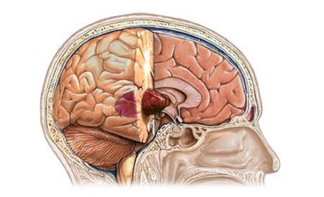 Tumori glave i vrata