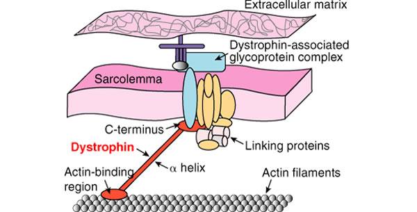 Bekerova mišićna distrofija