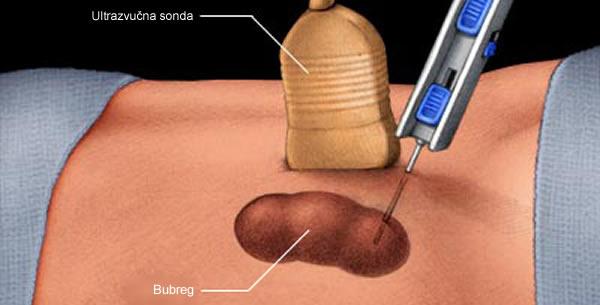 Biopsija bubrega