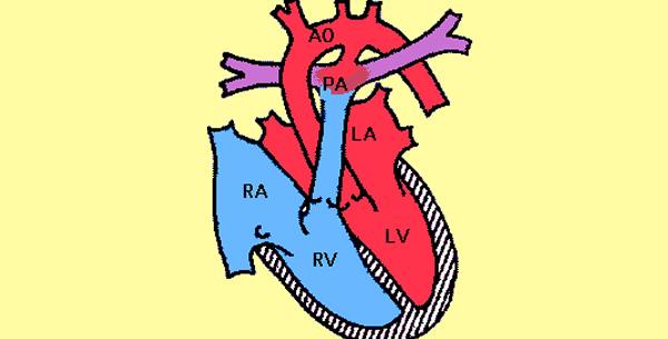 Ductus arteriosus persistens