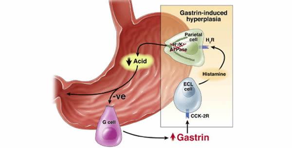 Gastrin