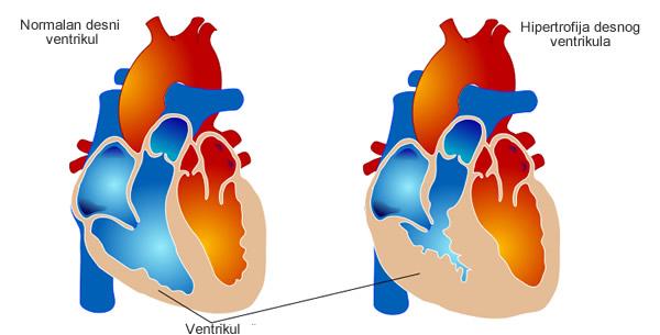 Hipertrofija desnog ventrikula