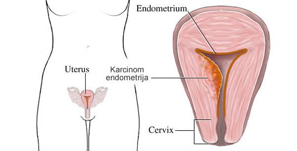 Karcinom maternice