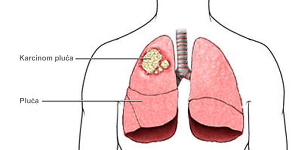 Karcinom pluća