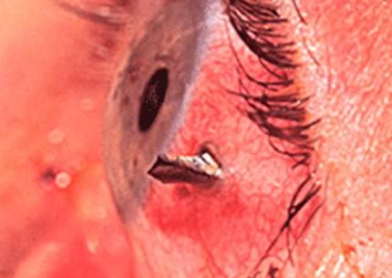 Povrede oka