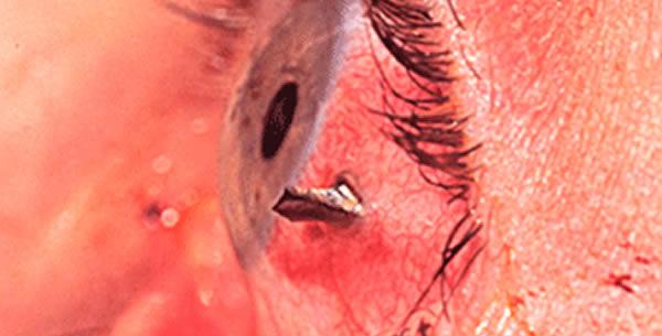 Povreda oka