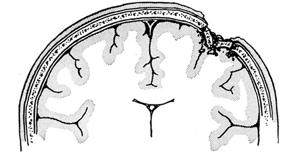 Povrede mozga