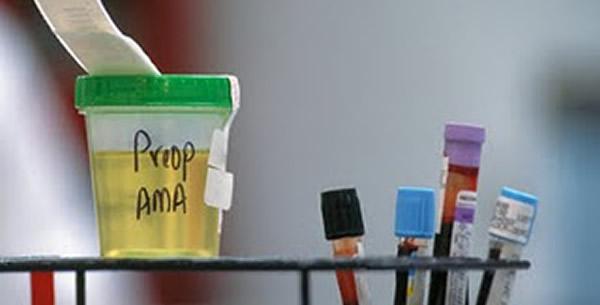Dijagnostički pregled urina