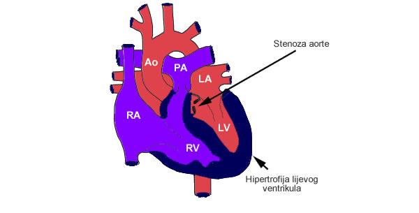 Stenoza aorte