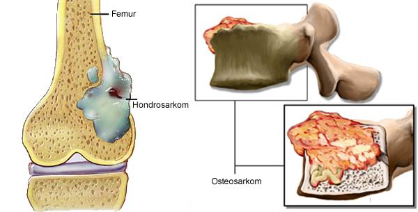 Tumor kosti