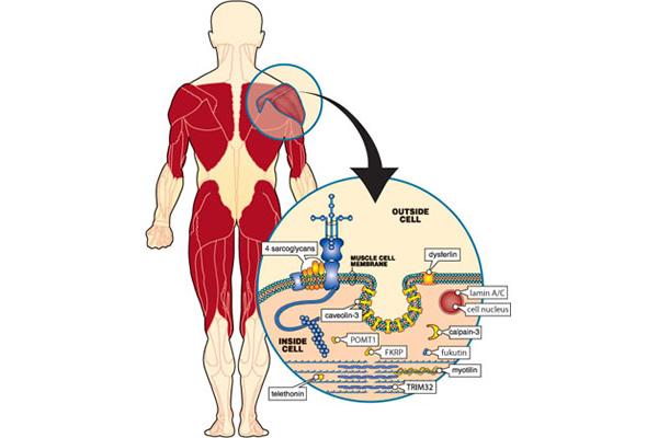 Udno-pojasne mišićne distrofije
