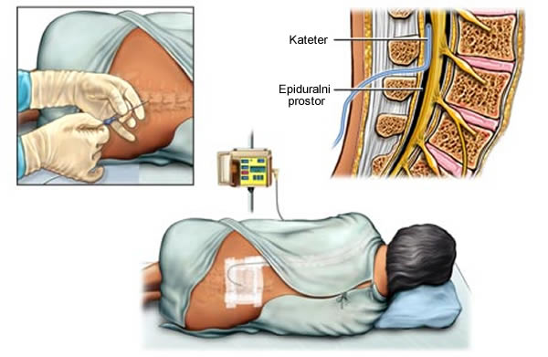 Epiduralna anestezija