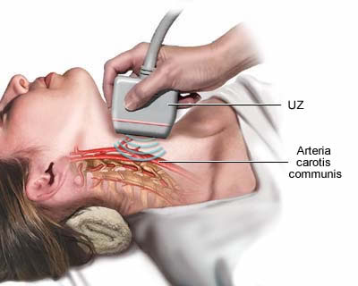Ultrazvuk arterie karotis
