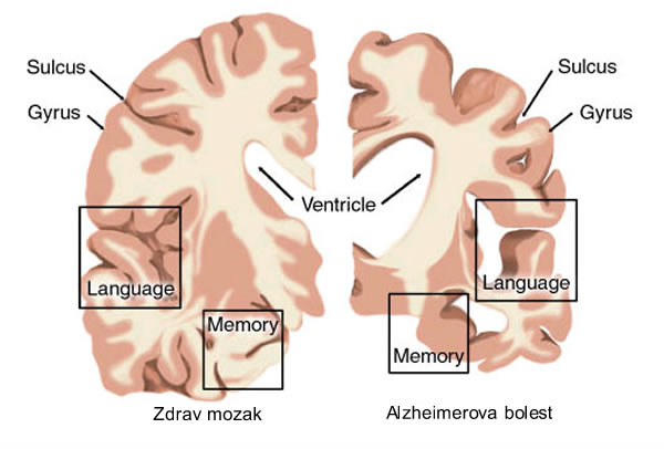 Alzheimerova bolest