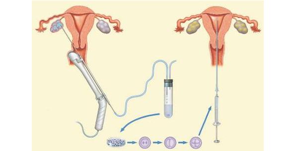 Inseminacija jajnih ćelija