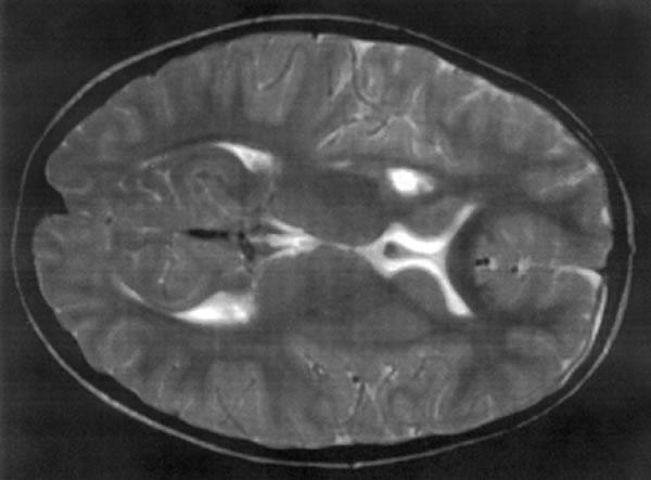 Neuroborelioza