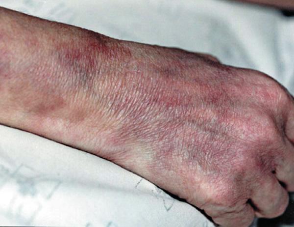 Periarteritis nodosa (livedo reticularis)