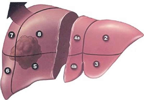 Resekcija jetre