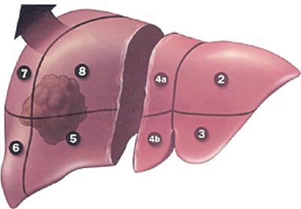 Hepatic Lobectomy Resection