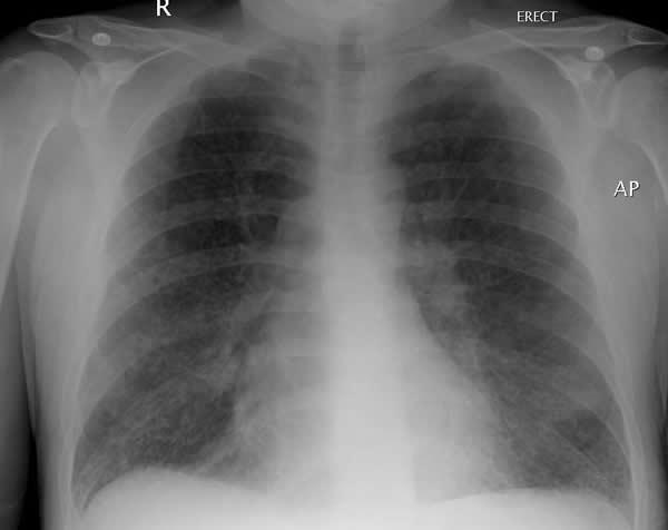 Kongenitalna cistična bolest pluća