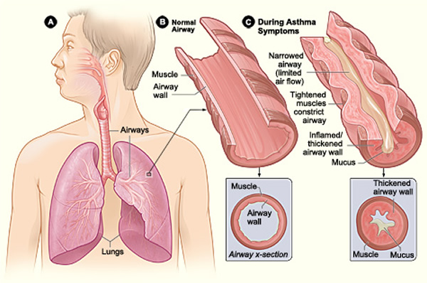 New Treatment Shows Promise For Asthmatics