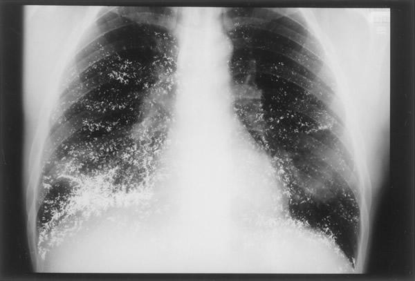 Nespecifična hospitalna pneumonija