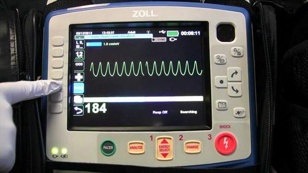 Električna kardioverzija i defibrilacija srca