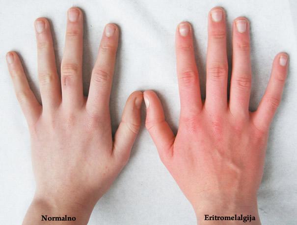 Eritromelalgija