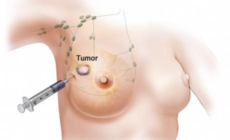Biopsija iglom se nedovoljno koristi u pacijentica s rakom dojke