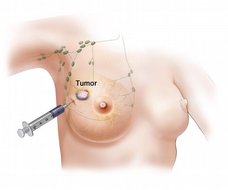 Biopsija dojke